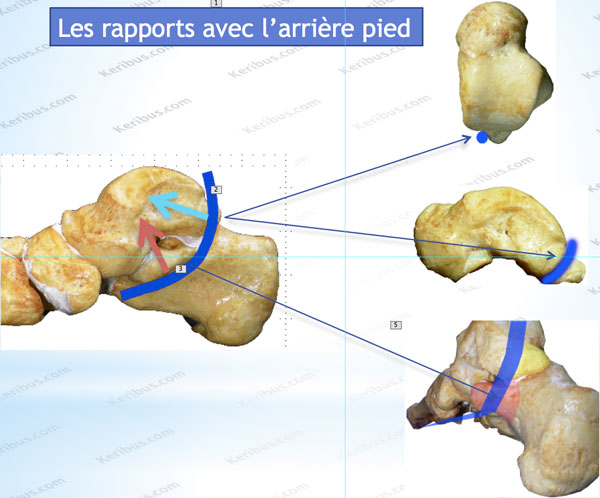 Marche_MB_Pied_Fixe
