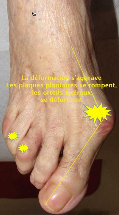 hallux-valgus_branche_sensitive